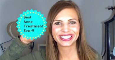 BEST NATURAL ACNE TREATMENT EVER!!