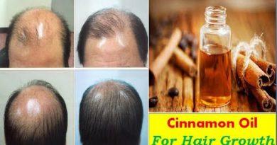 Cinnamon Essential Oil For Hair Growth - Hair Loss-Dandruff  | Natural Treatment- Home Remedies