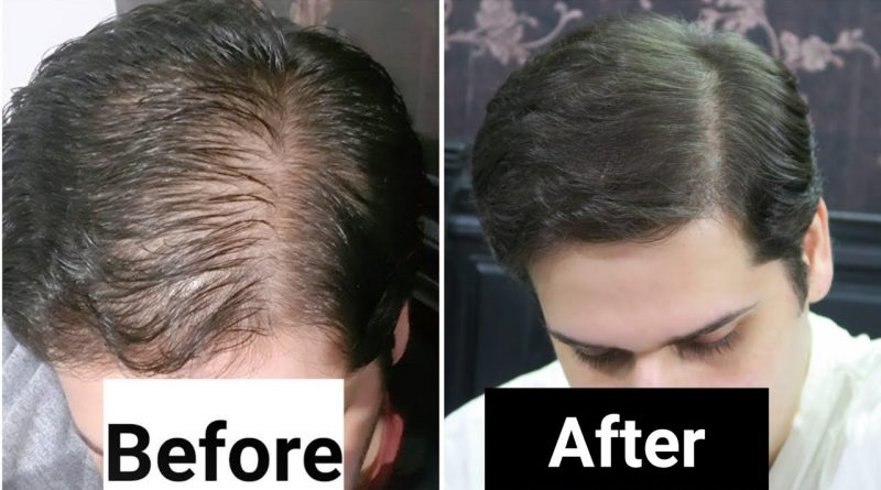 Rosemary Oil for Hair Loss - My Results w/ Pictures Before & After - How To Use